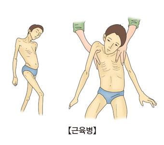 근육병 [출처: 서울아산병원]