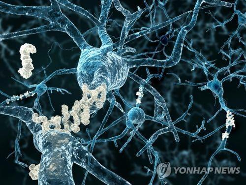 뇌 신경에 침적한 베타 아밀로이드 플라크  [연합뉴스 자료사진]