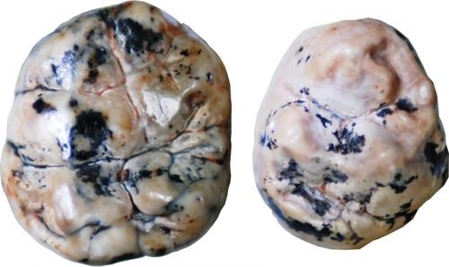 오스트랄로피테쿠스 아프리카누스(왼쪽)와 사람속 초기 조상의 치아 형태학적으로 분명한 차이를 보일 뿐만아니라 치아 에나멜의 칼슘 안정동위원소도 다른 것으로 분석됐다. [빈센트 발터 제공/이 기사에만 제한적으로 사용]