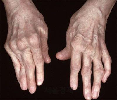 류머티즘 관절염 환자의 손
