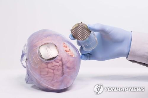 '티보'의 뇌와 피부 사이에 심어진 기록장치 [AFP=연합뉴스]