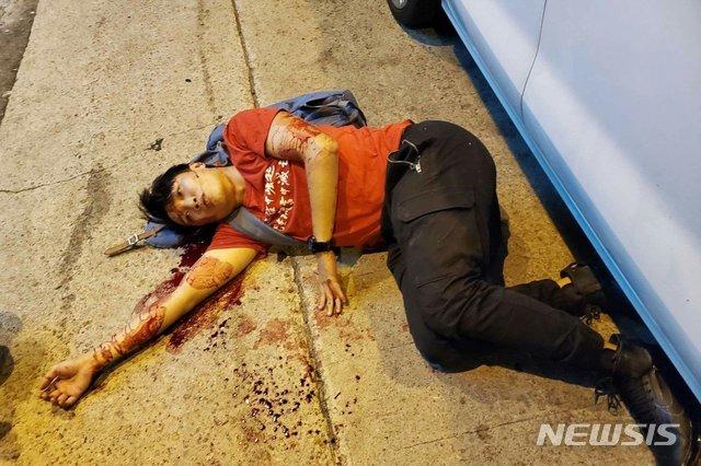 【서울=뉴시스】16일 괴한들로부터 망치 공격을 받아 유혈이 낭자한 모습으로 쓰러져 있는 홍콩 반정부시위 주최 단체 홍콩 민간인권전선(CHRF)의 주요 지도자 지미 샴의 모습. CHRF는 이번 공격이 정치적 이유에서 비롯된 테러라고 비난했다. <사진 출처 : CHRF 페이스북> 2019.10.16