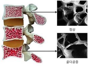 정상인과 골다공증 환자의 뼈 사진 [서울아산병원 제공]