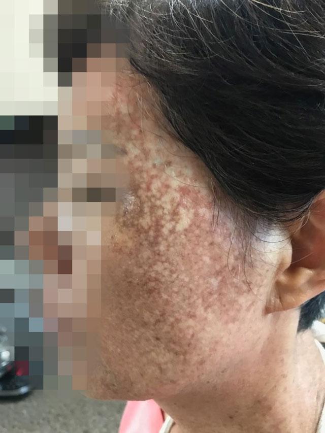 헤나 염색약의 부작용으로 얼굴이 검게 변한 60대 여성 A 씨