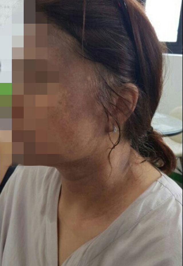 헤나 염색약 부작용으로 얼굴이 검게 변한 50대 여성 B 씨