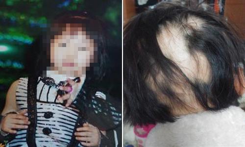 서혜림(가명)양의 여섯살 때(왼쪽 사진)와 최근 모습. 서동수씨 제공