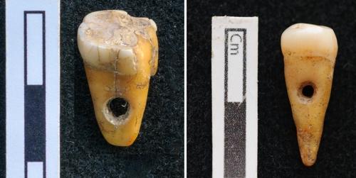 사람 이빨에 구멍을 뚫은 8천500년 전 장신구 [코펜하겐 대학 제공]