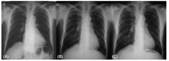 규폐증이 진행되는 과정을 보여주는 X선 사진. 오른쪽으로 갈수록 결절(혹)이 늘어난 것을 볼 수 있다. [사진 연세대 원주의대(대한결핵및호흡기학회지, 2005년0]