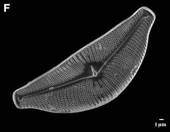 낙동강에서 채집된 규조류(돌말) 의 심벨라(Cymbella tumida)의 전자현미경 사진. [국립낙동강생물자원관]
