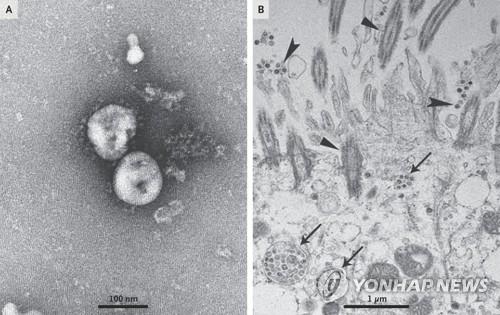 배양된 신종 코로나바이러스를 광학현미경으로 관찰한 모습 [NEJM 논문 발췌]