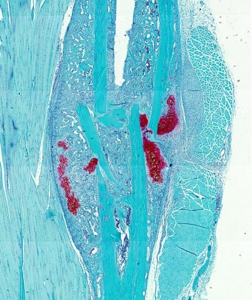 생쥐의 뼈 골절 표본. 적색이 연골 부위다. [루벤대 니크 판 가스텔 제공]