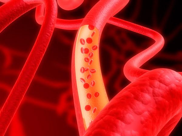 올바른 생활습관 실천만으로도 심혈관질환의 75%는 예방할 수 있다./사진=클립아트코리아