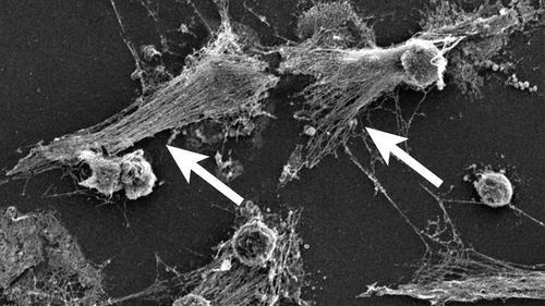 코로나19로 재조명 받는 호중구 급성 호흡곤란 증후군 등 코로나19의 위중한 증세가 호중구의 과잉 활성화에서 비롯될 수 있다는 연구 결과가 나왔다.  많을 땐 전체 백혈구의 70%를 차지하기도 하는 호중구는 NETs라는 독성 DNA 망(화살표)으로 박테리아 등 병원체를 공격한다.  [콜드스프링하버 연구소 제공/ 재판매 및 DB 금지]