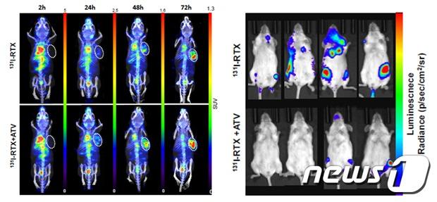 표적항암제(리툭시맙)와 고지혈증 치료제(아토르바스타틴) 병용투여시 항암제의 암 조직 침투량이 증가했다(왼쪽) 표적항암제와 고지혈증 치료제 병용투여시 림프종 치료효과가 증가했다(오른쪽) (한국원자력의학원 제공) 2020.05.18 / 뉴스1
