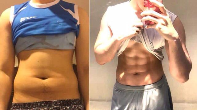복부 근육 성형 수술