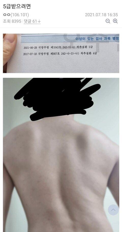암공익이 있는 대한민국에서 5급받는 방법. jpg