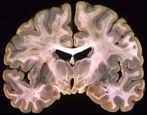 예쁘게 coronal section한 brain